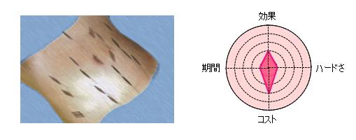 sousinbari